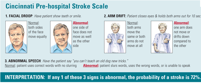 Image result for FAST stroke assessment scale